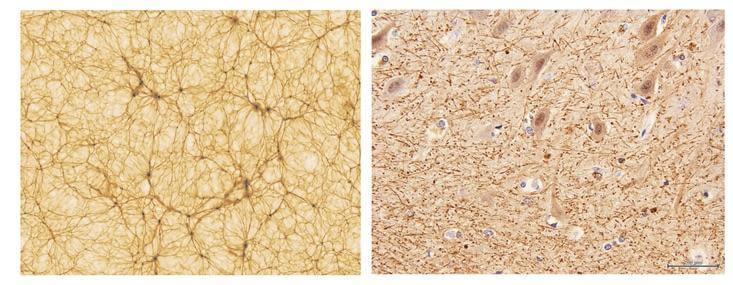 宇宙と脳は似ている